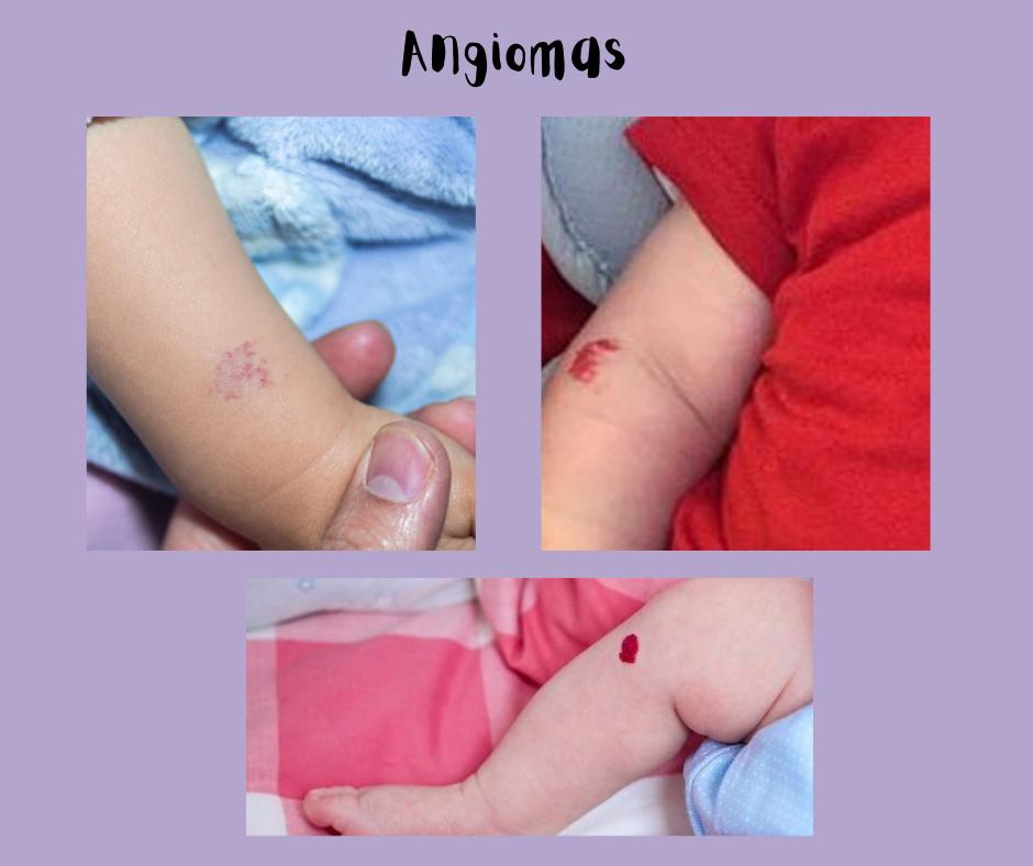 Angioma